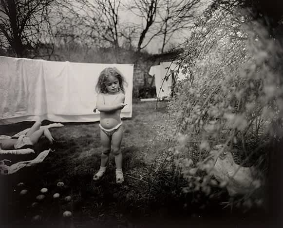 Sally Mann, Hangnail, 1989