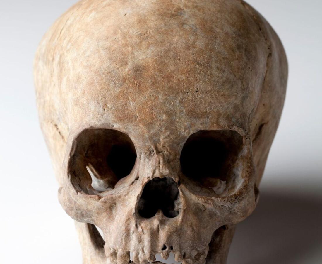 Cléa van der Grijn, Pediatric Bronze Skull