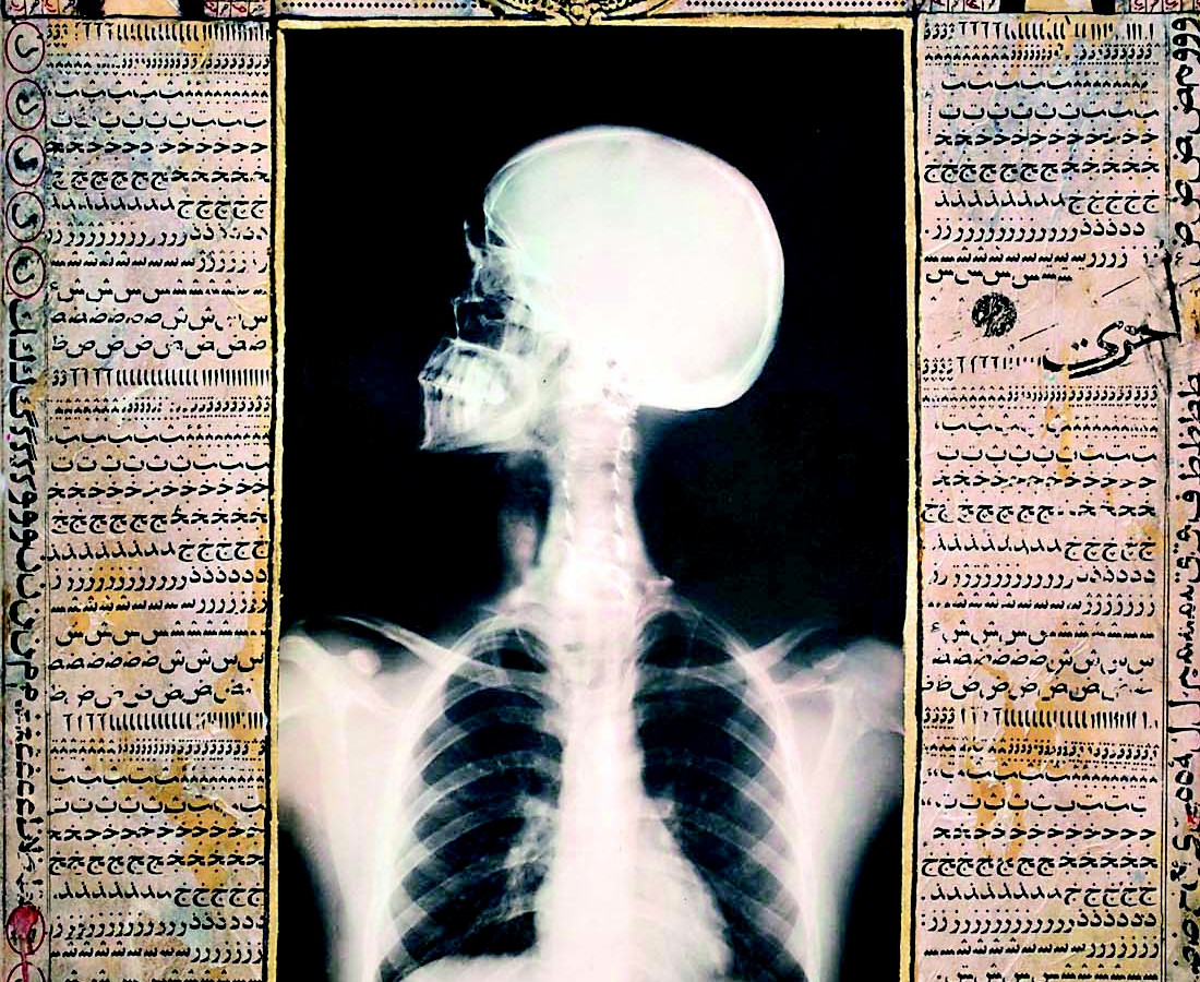 Ahmed Mater, X-ray 5