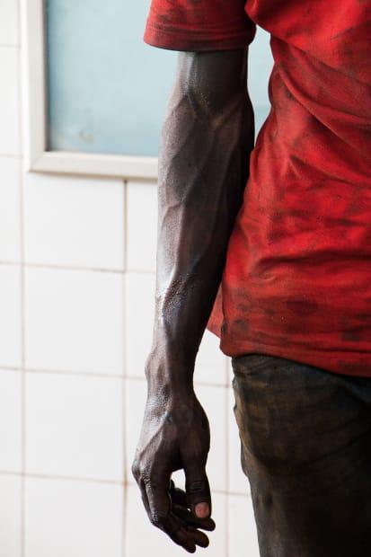 Ange-Frédéric Koffi, Arm, 2016