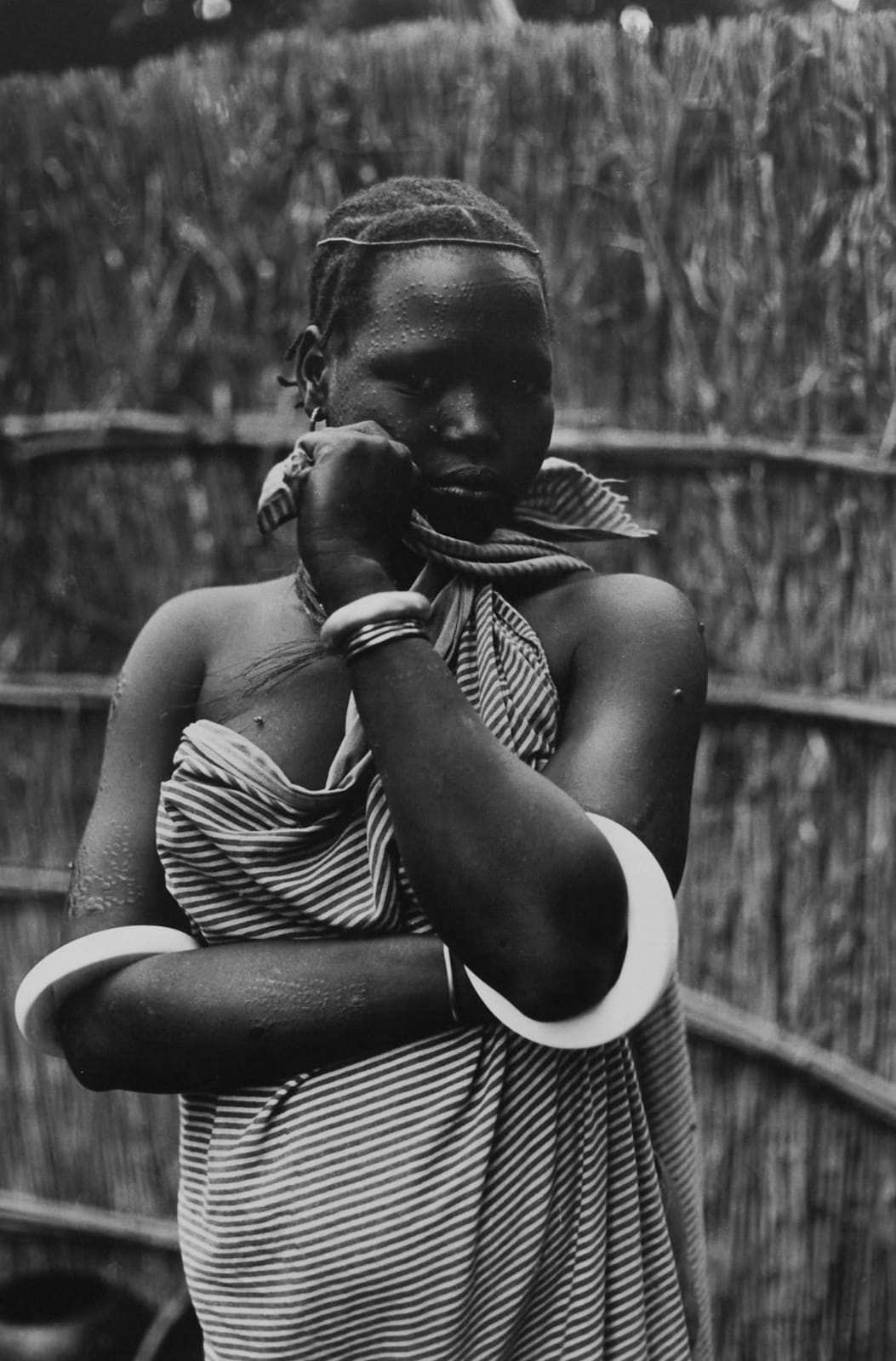 Ming Smith, Cicatrice Cosmetique, Gambela, Ethiopia, 1973