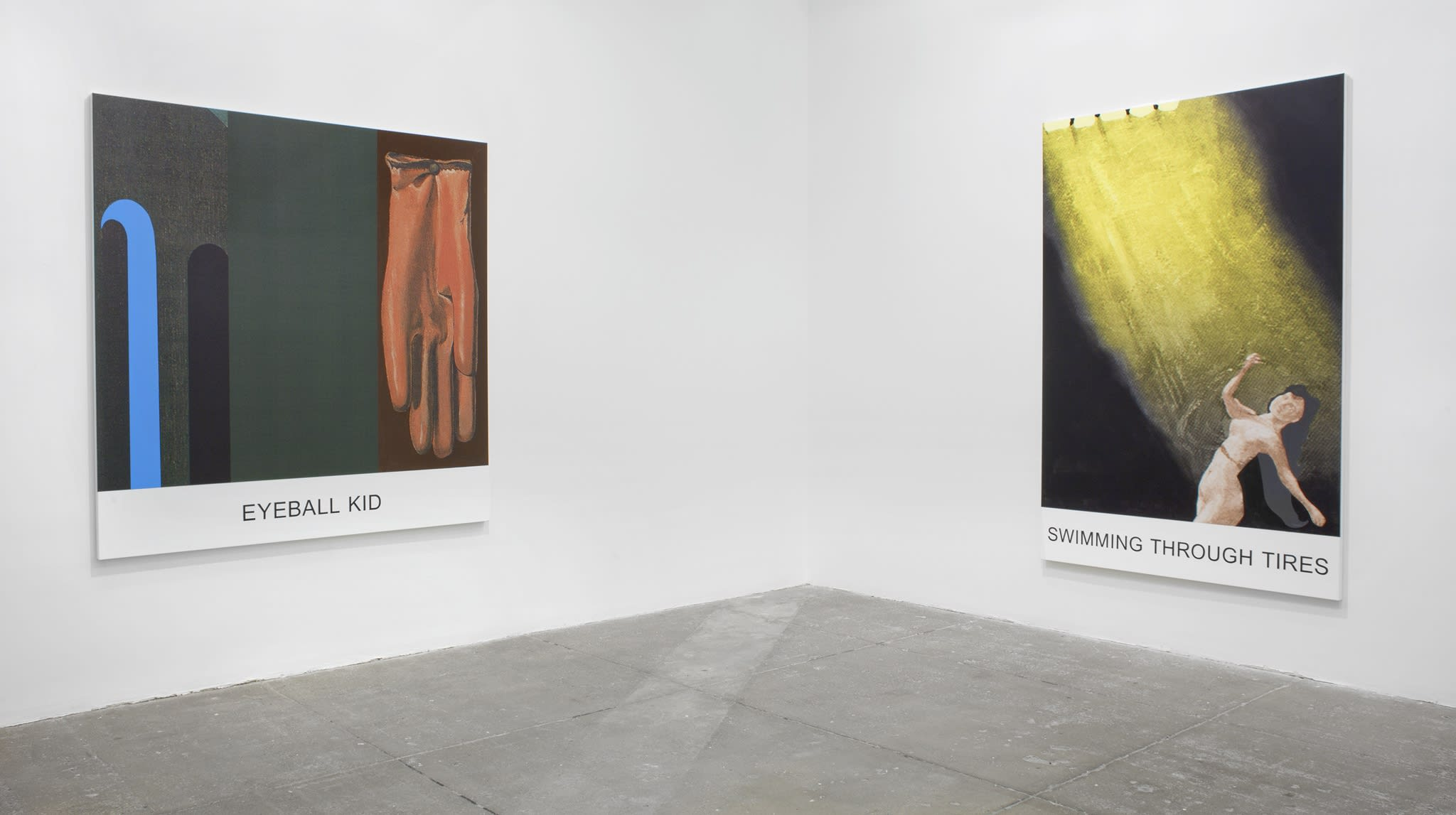 Two prints on canvas with words underneath: 1- a dark brown glove, 2-a naked woman in a dark room turns away from the sunlight above her