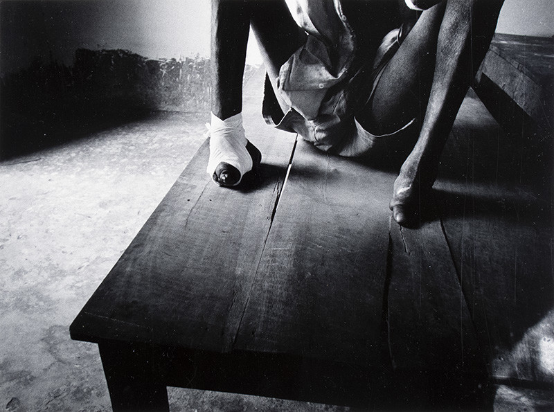"""<span class=""""link fancybox-details-link""""><a href=""""/artists/110-larry-towell/works/35029-larry-towell-untitled-portrait-of-a-disfigured-man-circa-1981/"""">View Detail Page</a></span><div class=""""artist""""><strong>Larry Towell</strong></div> b. 1953 <div class=""""title""""><em>Untitled [Portrait of a disfigured man]</em>, circa 1981</div> <div class=""""signed_and_dated"""">Signed, in pencil, au verso<br /> Printed circa 1981</div> <div class=""""medium"""">Gelatin silver print</div> <div class=""""dimensions"""">7 ¾ x 10 ½ inch (19.69 x 26.67 cm) image<br /> 10 ¾ x 13 ¾ inch (27.31 x 34.93 cm) paper</div> <div class=""""edition_details""""></div><div class=""""copyright_line"""">© Larry Towell / Magnum Photos</div>"""