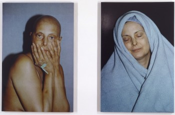 Hannah Wilke, 'Intra Venus Series 4, July 26 and February 19', 1992.