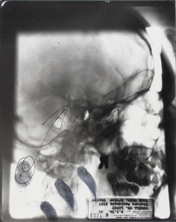 Larry Towell, Untitled [X-ray], 1974