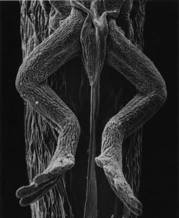 Claudia Fährenkemper, 115-01-8 Legs of a Tadpole, 40x, 2001