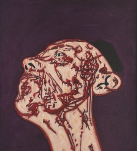 <em>Head and Neck</em>, 1995