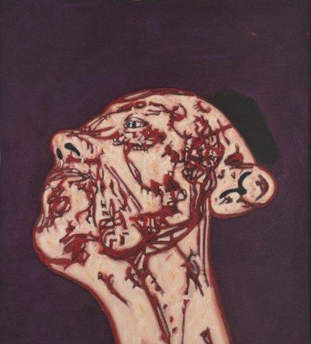 <em>Head and Neck</em>, 1995