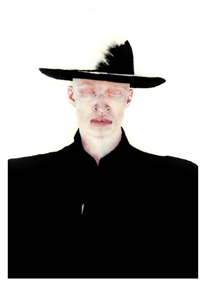 Nadia Kurbatov, Albino