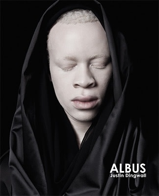 Justin Dingwall, ALBUS