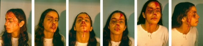 Untitled (Self Portrait with Blood)