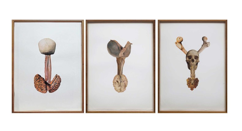 rodolpho parigi artéria epigástrica picasso, proeminência tireóidea degas, atlas, 2015