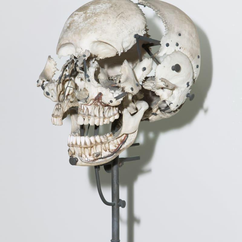 André Penteado, Crânio utilizado para estudos anatômicos, Museu Dom João VI, 2017