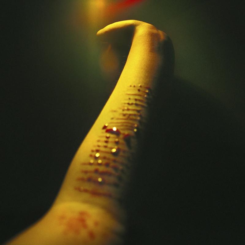 《身体/伤》 系列 Body/wound series 2008