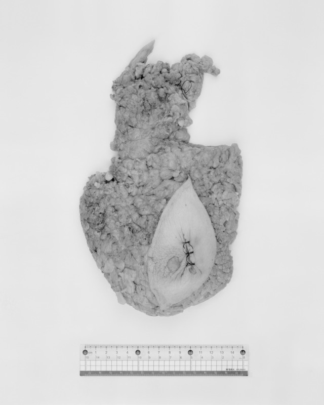 李朝晖 《大体:标尺下的器官09-胆囊》 Li Zhaohui SpecimenLHuman Organs Under a Ruler 09 - Gallbladder 2012 - 2013