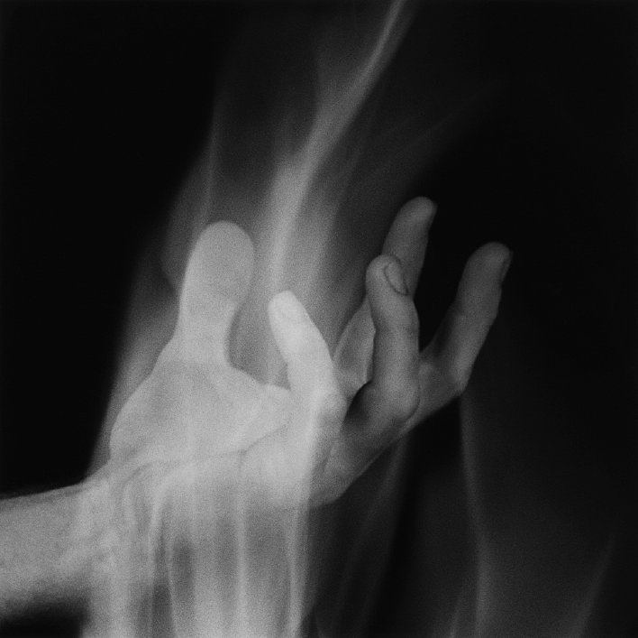 Robert Mapplethorpe  Hand In Fire, 1985  Silver gelatin print  40.6 x 50.8 cms / 16 x 20 ins  Edition 5/10  Stamped and signed by the Robert Mapplethorpe Estate
