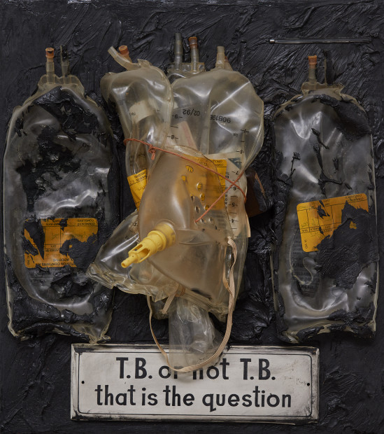 T.B. or not T.B., 1990