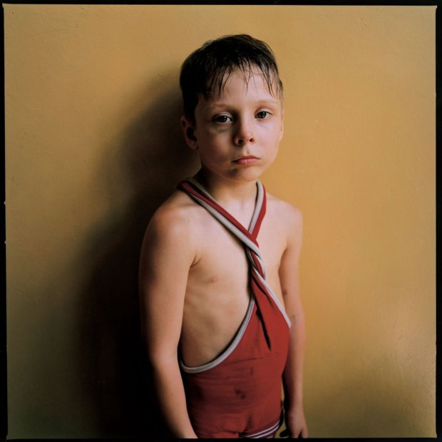 Michal Chelbin Black Eye, Ukraine chromogenic print 37 x 37 inches